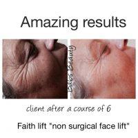 faith lift1